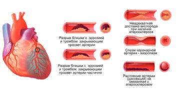 Какие бывают инфаркты или классификация инфаркта миокарда