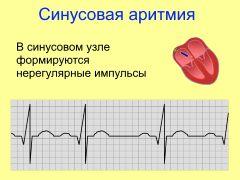 Синусовая аритмия сердца у беременной 97