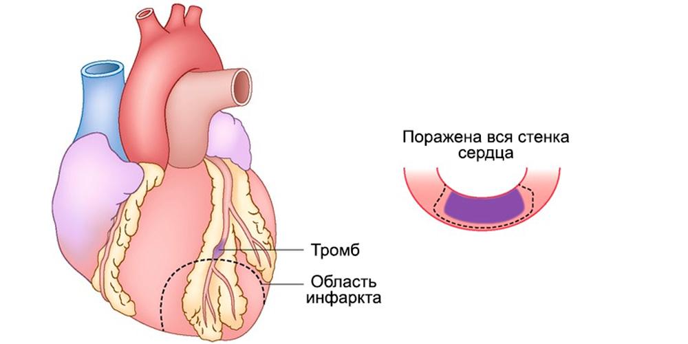 Проникающий, трансмуральный, Q-позитивный инфаркт миокарда, или инфаркт миокарда с элевацией ST