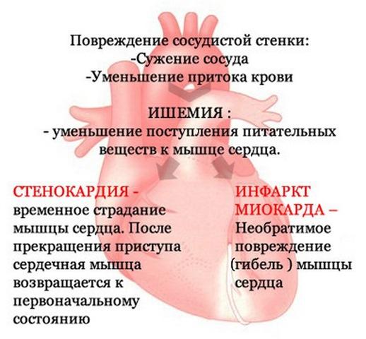 Атеросклероз, ишемия, стенокардия, инфаркт