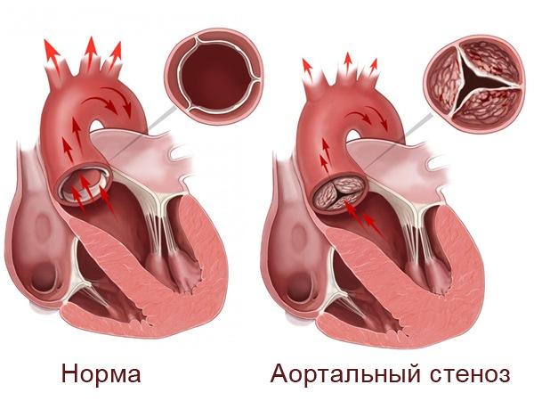 Аортальный стеноз | libemed.ru