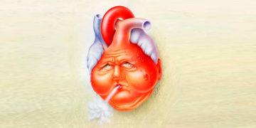 Отдаленные осложнения инфаркта миокарда