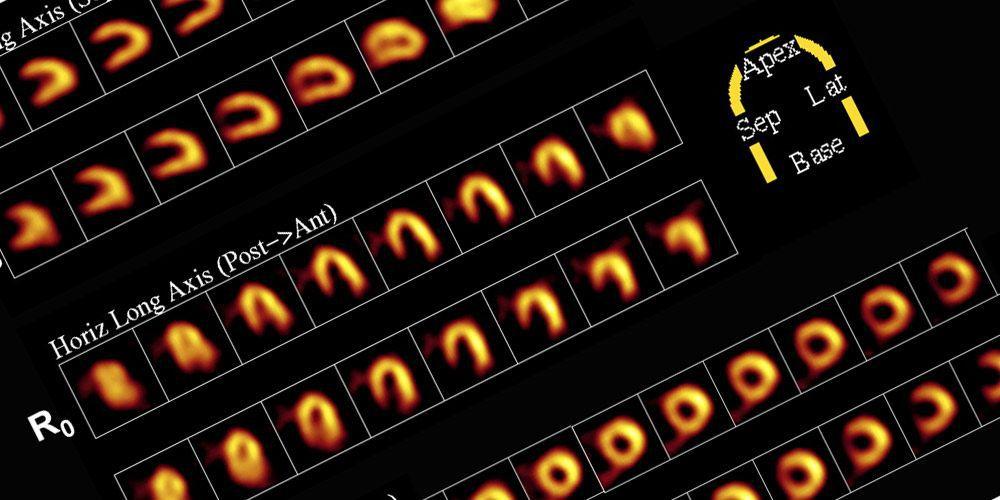 Радиоизотопное исследование сердца